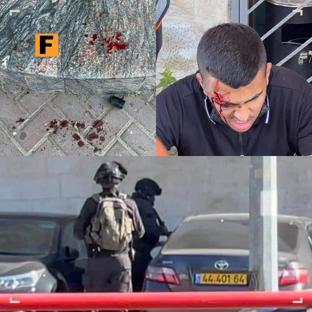 شلیک به جوان فلسطینی