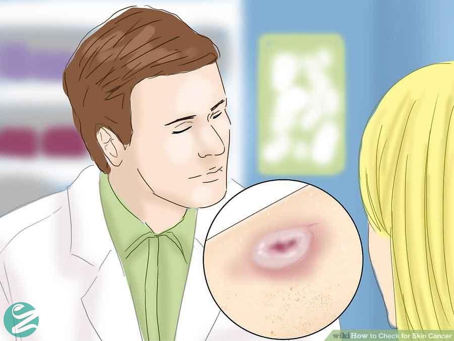 علائم سرطان پوست چیست؟ چطور سرطان پوست را تشخیص دهیم؟