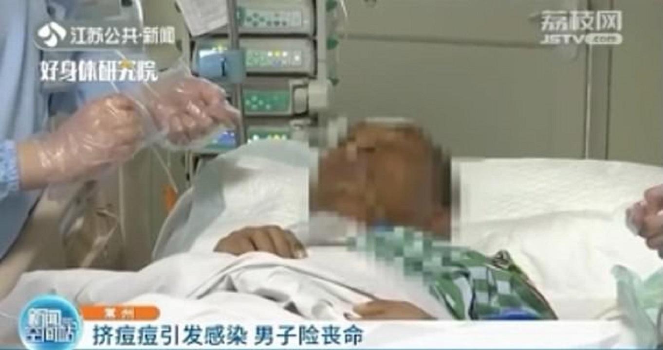ترکاندن جوش صورت، مرد چینی را تا پای مرگ برد! +فیلم