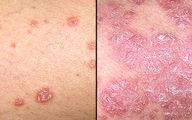 چگونه پسوریازیس را از سرطان پوست تشخیص دهیم؟