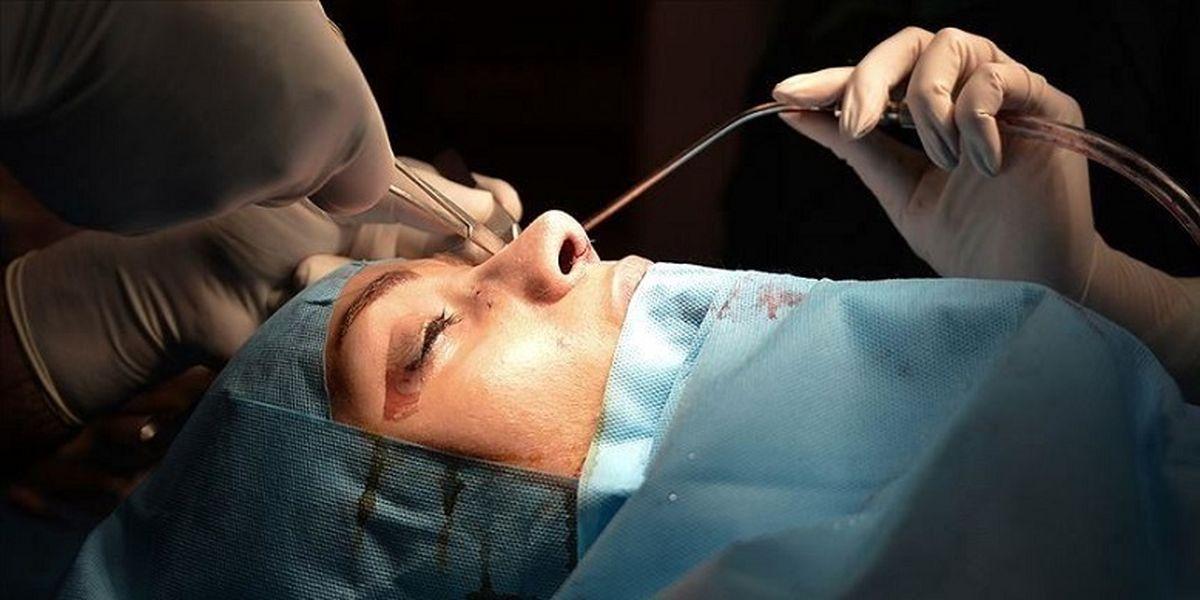 عکس چندش آور از عمل بینی بازیگر زن معروف
