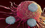 ۵ سرطان شایع در بین ایرانیها