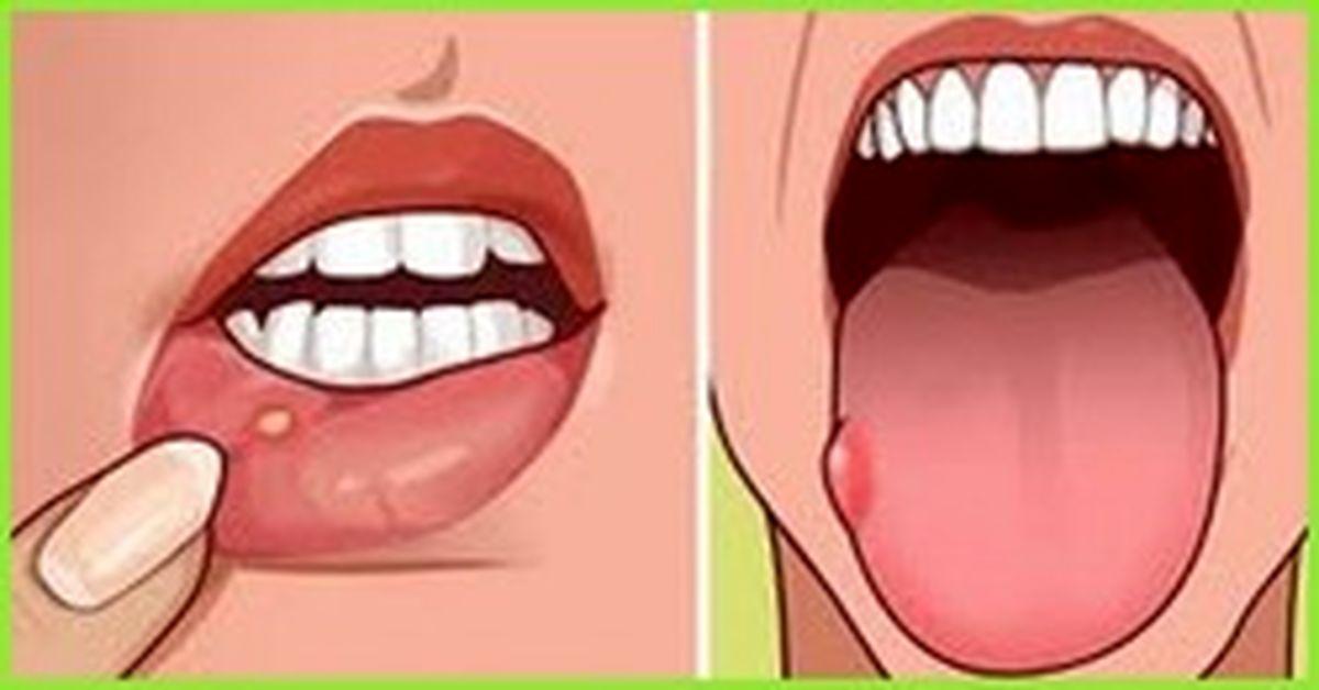 زخم دهان را چگونه درمان کنیم؟!