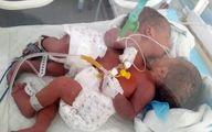 پاسخ رد سازمان بهداشت جهانی درباره نوزادان دوقلوی یمنی