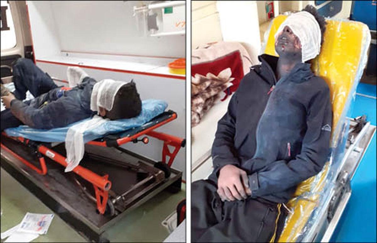 انفجار ترقه 2 برادر را سوزاند! +عکس