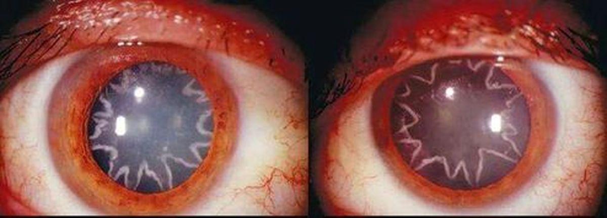 چشمهای مرد برقکار شما را حیرت زده میکند! +عکس