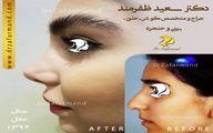 مراقبت های بعد از جراحی بینی را جدی بگیرید