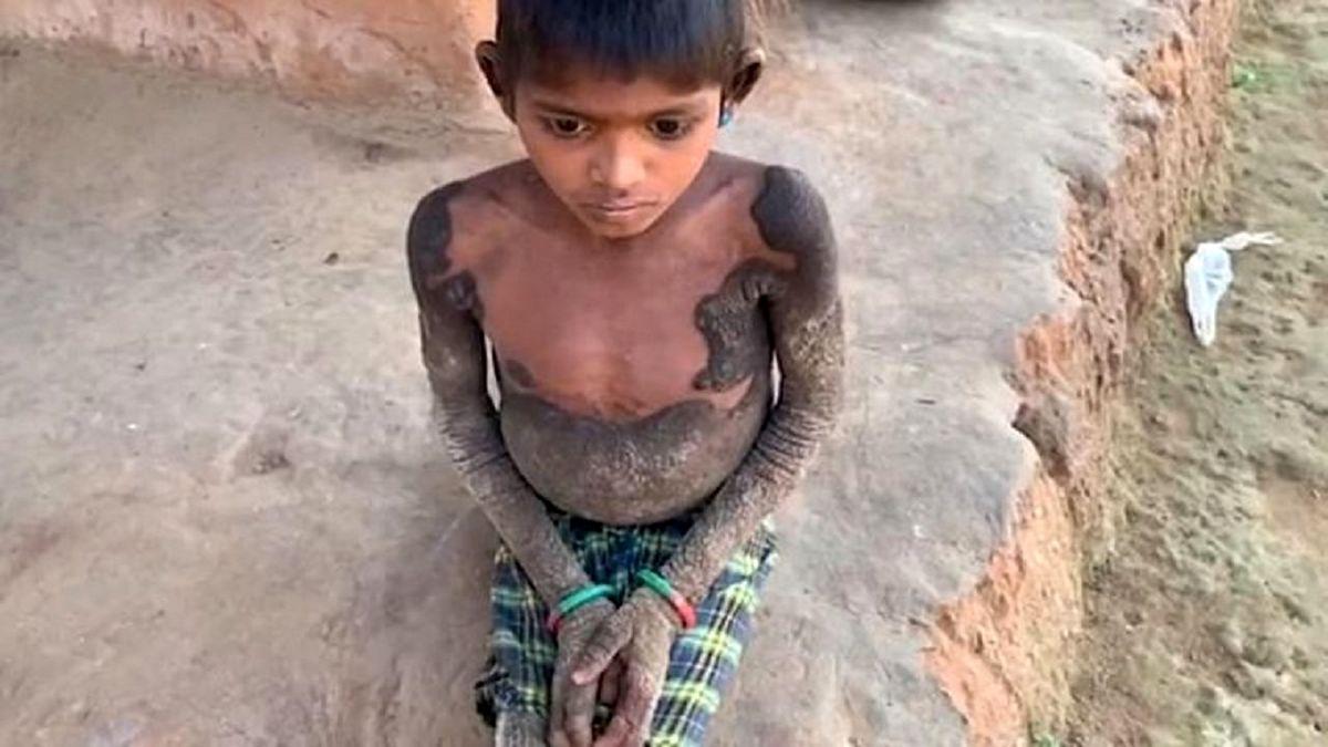 دختری ۷ ساله بخاطر بیماری نادر شبیه تمساح شد +عکس