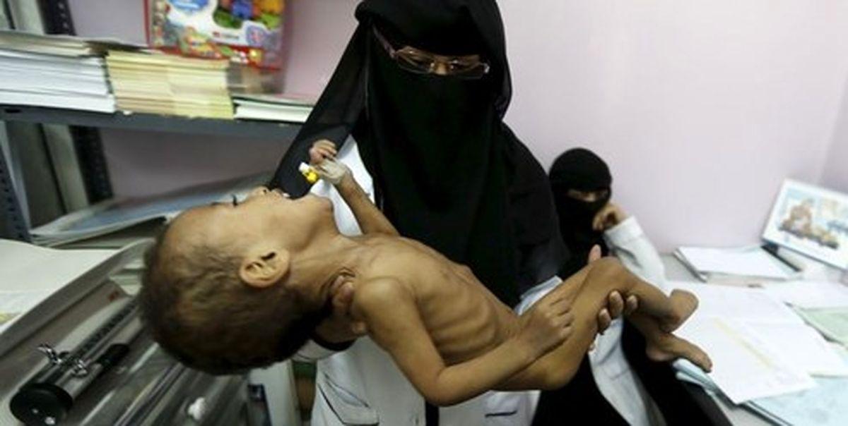 آمار رسمی | هر ۵ دقیقه یک کودک یمنی میمیرد