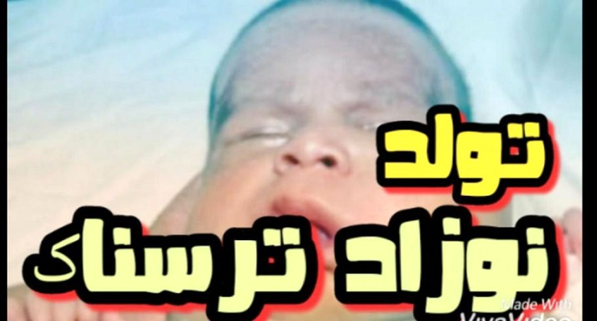 فیلم 18+ از ترسناکترین نوزاد ایران! + خانواده نوزاد عجیبالخلقه شوکه شدند