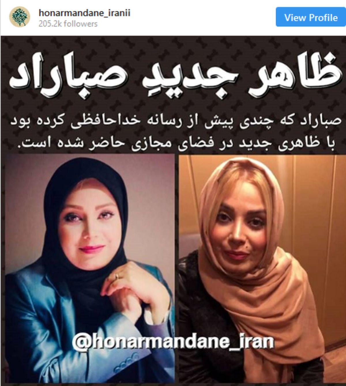 تغییر ظاهر مجری ایرانی پس از خداحافظیاش با تلویزیون! +عکس